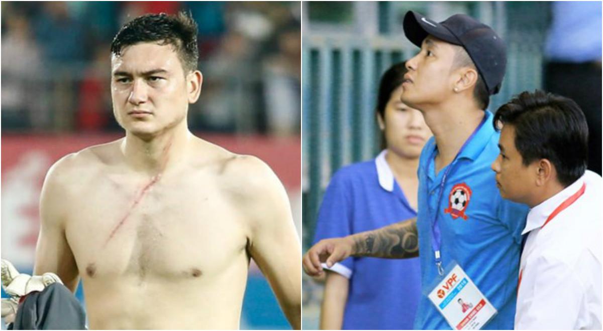 Điểm tin bóng đá Việt Nam sáng 12/09: Lâm 'tây' về Nga dưỡng thương, AFC phạt VFF 10.000 USD